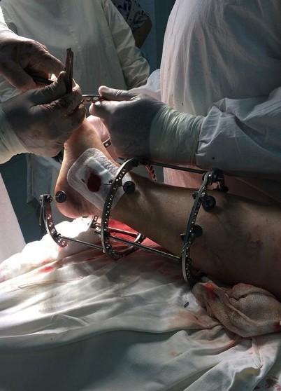 Закрытый оскольчатый перелом обеих лодыжек со смещение и подвывихом стопы