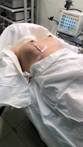 Уменьшение груди. Маммопластика в Махачкале