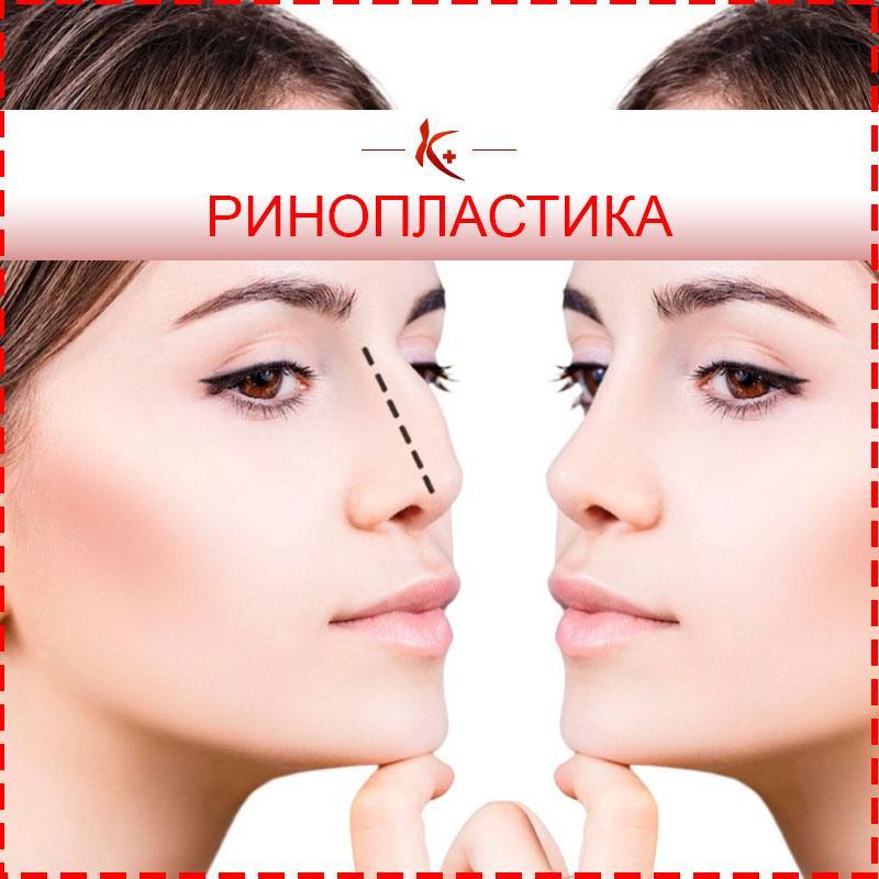 Ринопластика (коррекция носа) в Махачкале