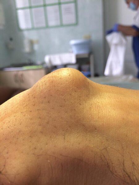 Удаление гигантской гигромы кисти в Махачкале