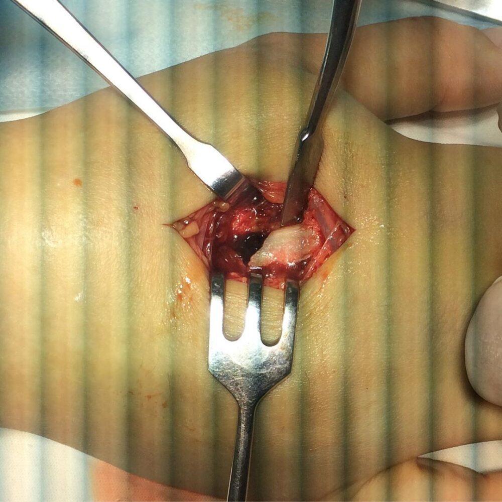 Перелом второй пястной кости со смещением