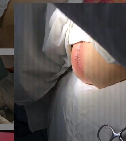 ПАРАПРОКТИТ (параректальный абсцесс)- острое или хроническое воспаление