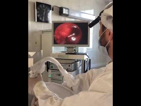 Гайморотомия (удаление кисты гайморовой пазухи)⠀