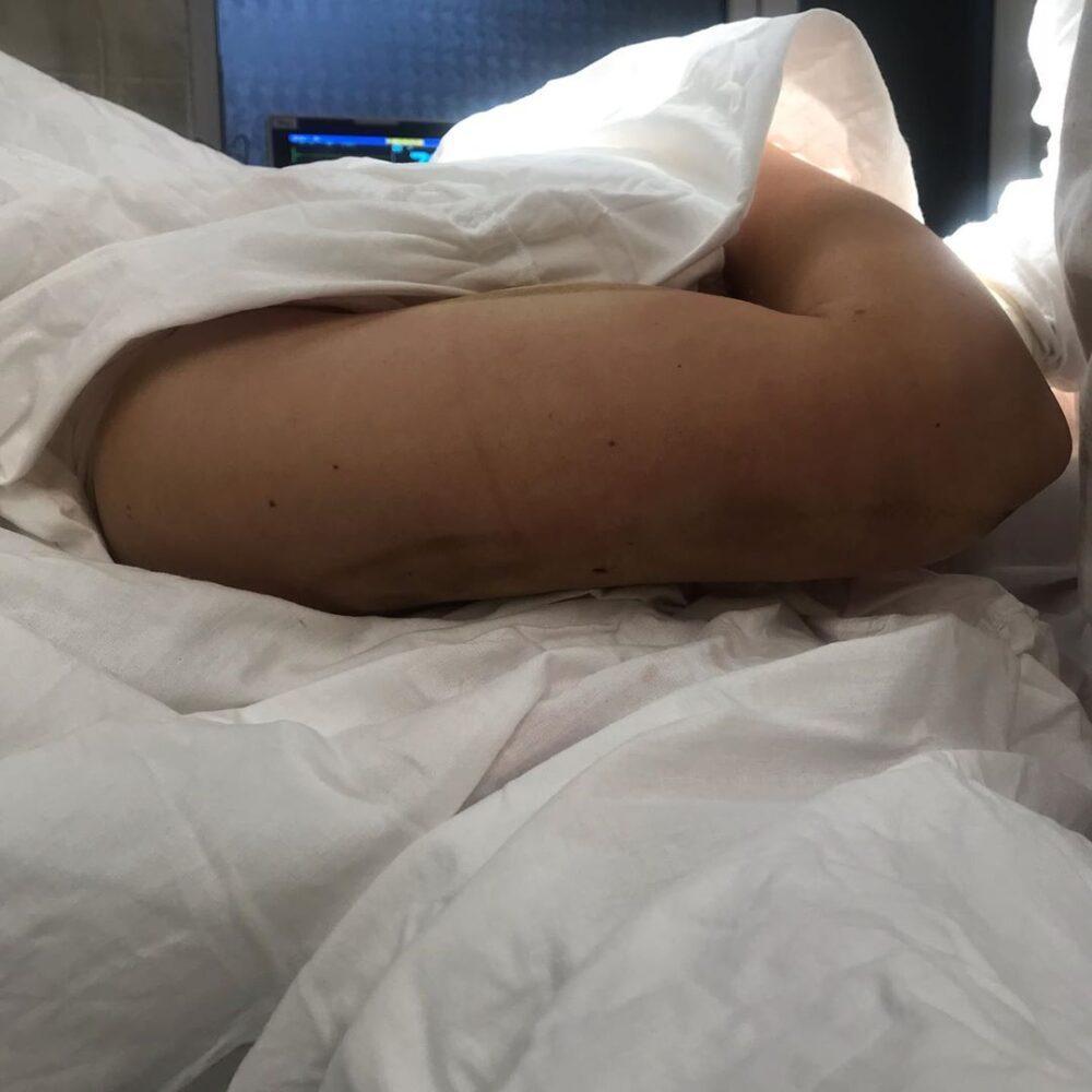 Липосакция зоны плеч в Махачкале