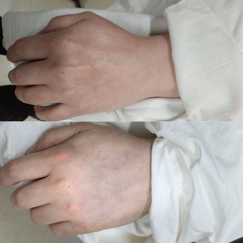 Круговая липосакция в сочетании с липофиллингом кистей рук.