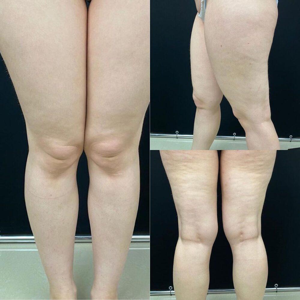 Красивые, стройные ноги без спортзала