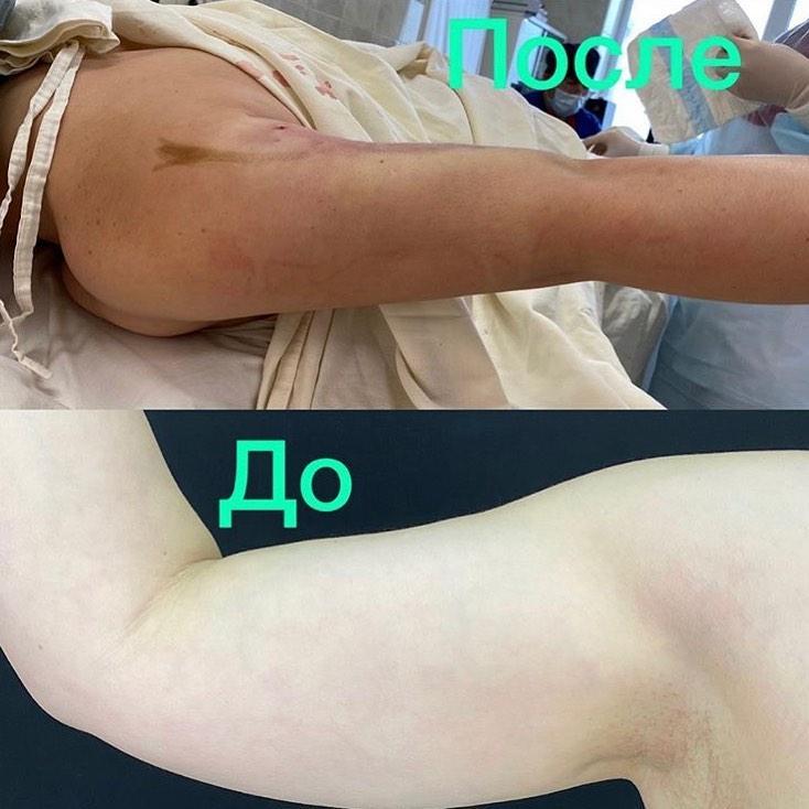 Липосакция плеч