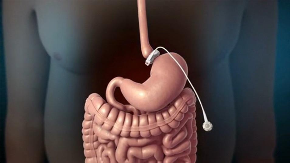Резекция желудка: что это?