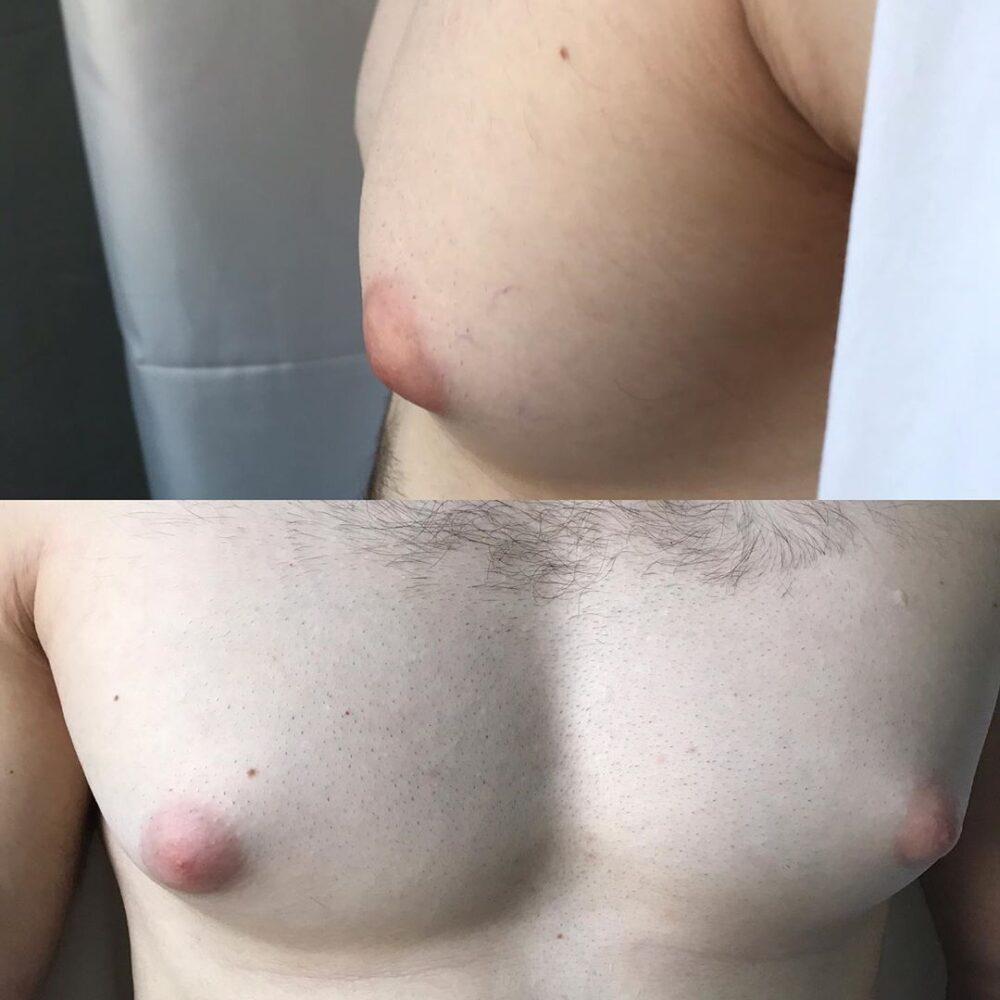 Операция по удалению молочных желез у мужчин в Махачкале