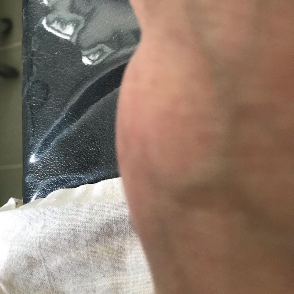 Липома ноги
