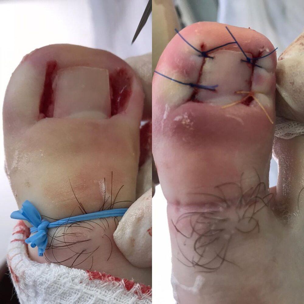 Удаление вросшего ногтя в Махачкале в центре хирургии Медикус