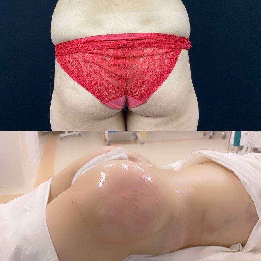 Круговая липосакция, Абдоминопластика, Липофилинг ягодиц