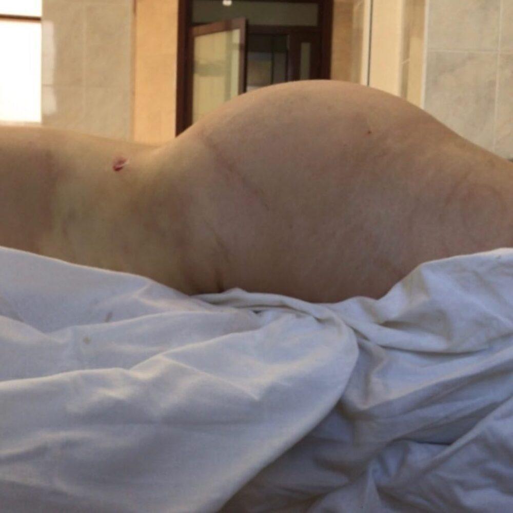 Круговая липосакция и липофилинг груди ⠀
