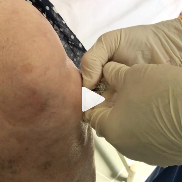 Лечение гонартроза в Махачкале