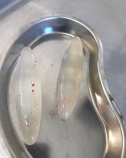 Операция по поводу удаления имплантов голени. 