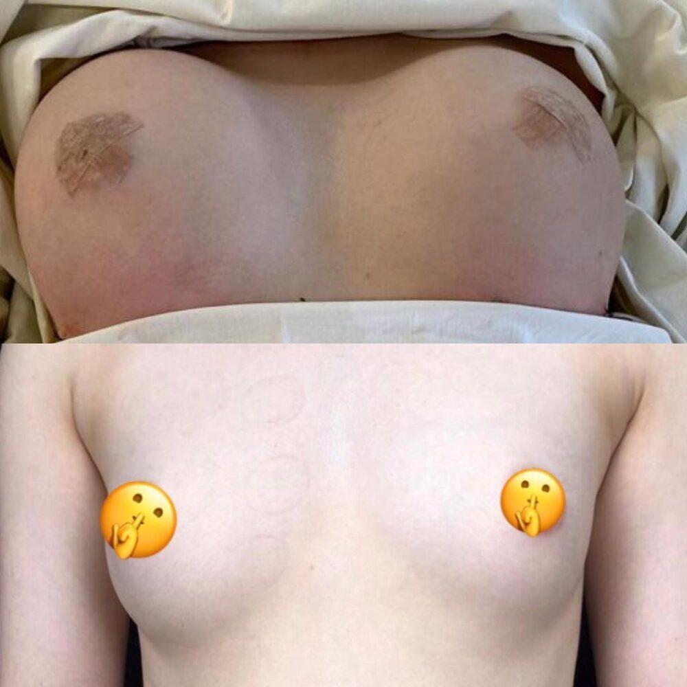 Увеличивающая маммопластика имплантам