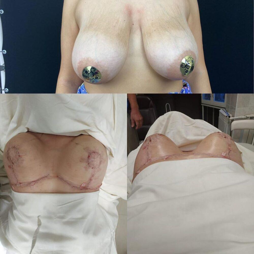 Якорная подтяжка груди.