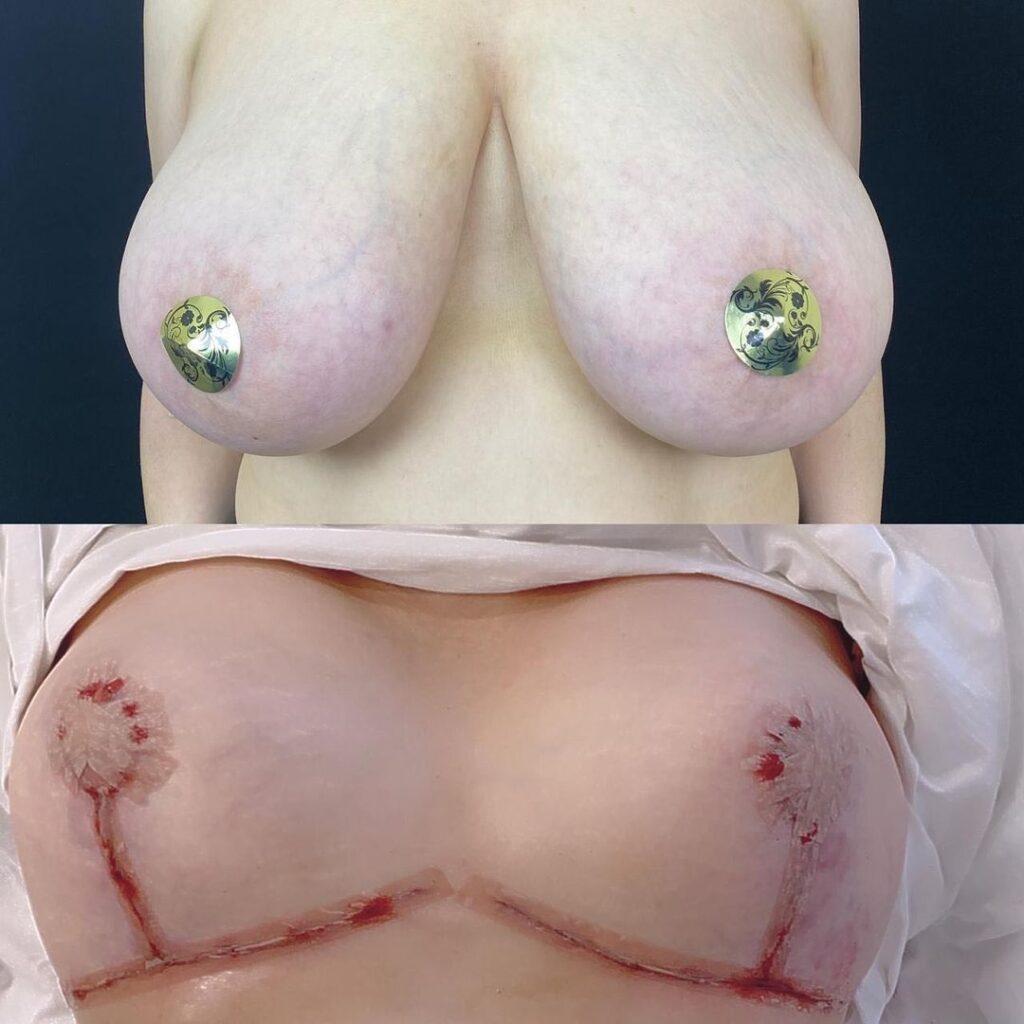 Подтяжка груди с уменьшением на 3 размера (с 6 на 3)