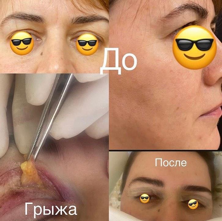 Верхняя блефаропластика и иссечённая грыжа