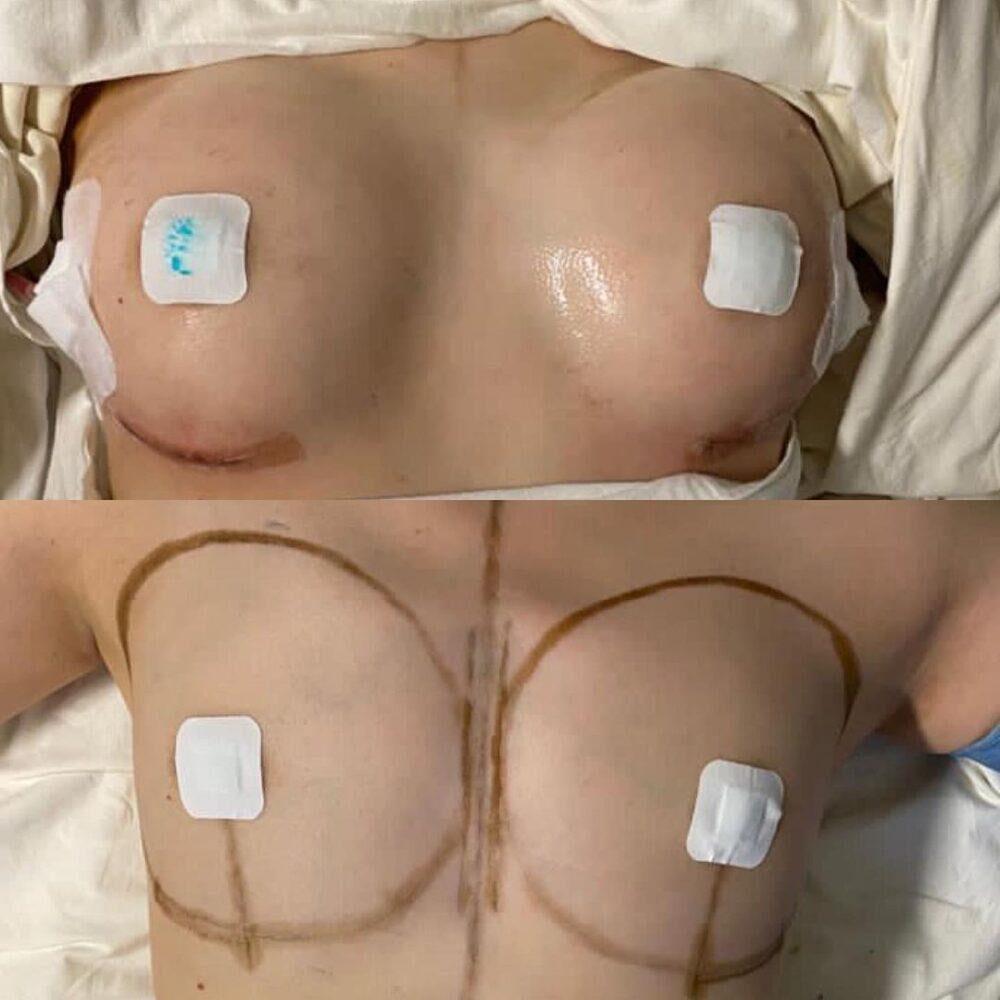 Увеличивающая маммопластика имплантами
